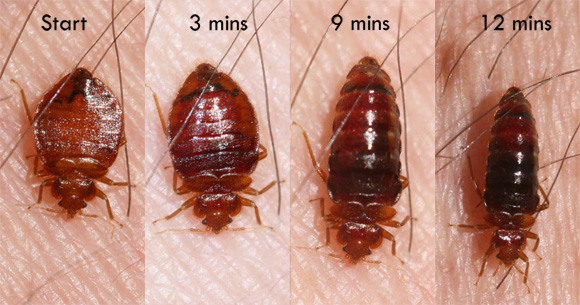 bed bug transformation image